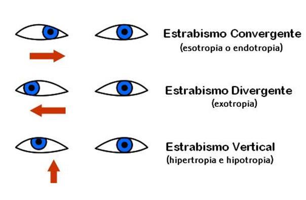 tratamientos-visuales_image029