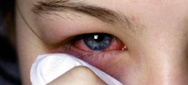 Reduce las molestias del ojo lloroso
