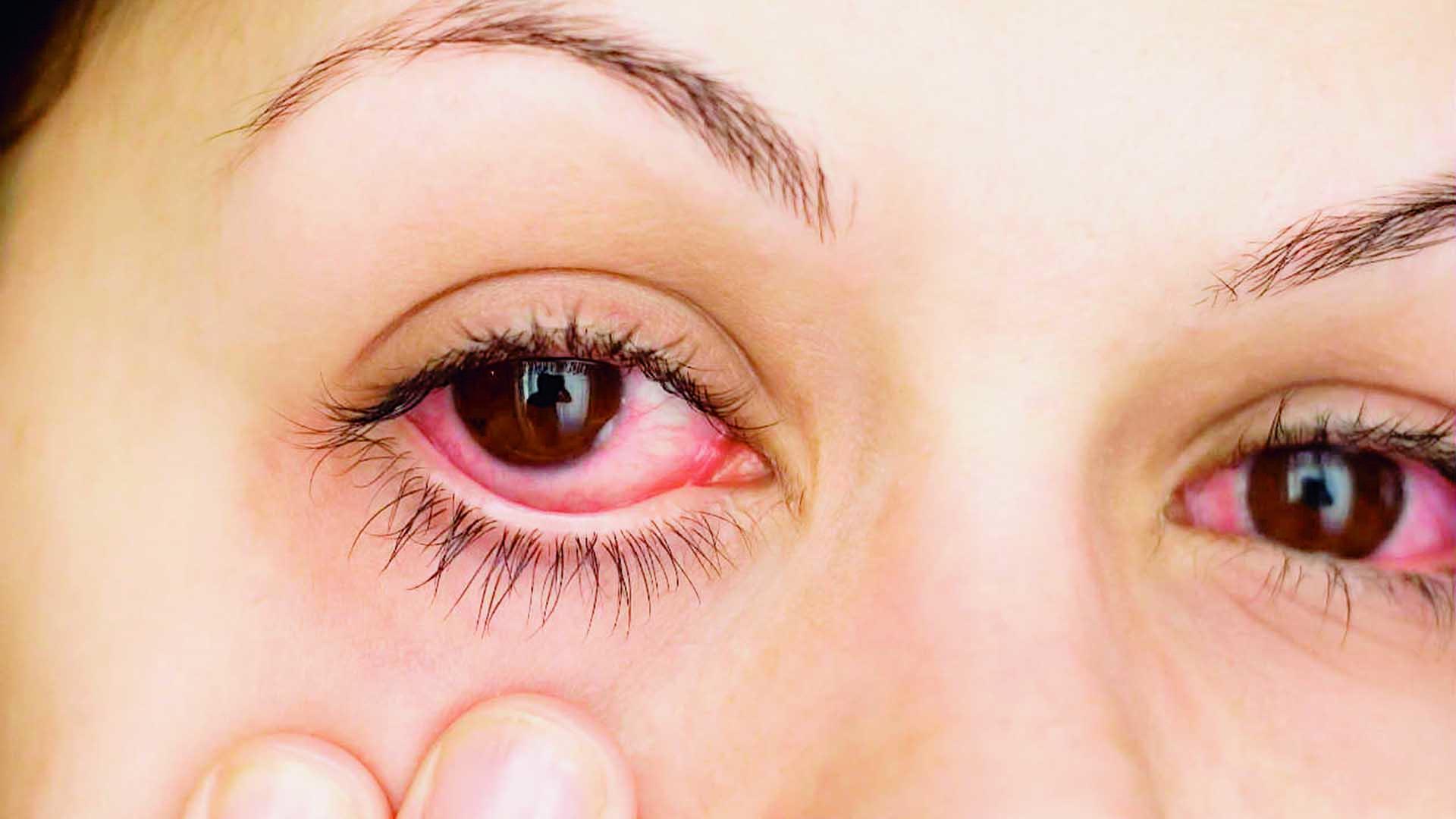Las alergias y los ojos